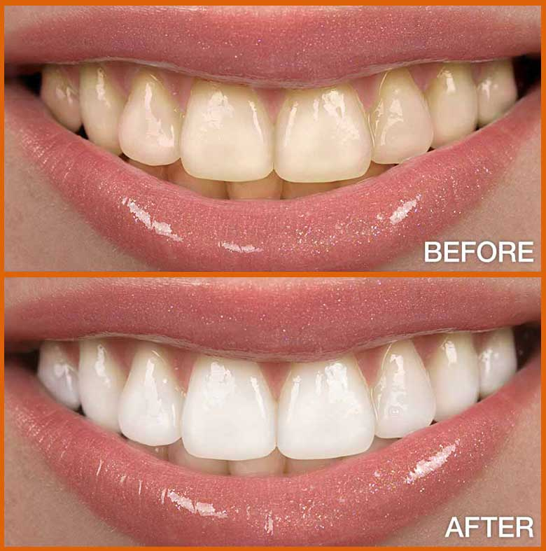 bleaching-tooth