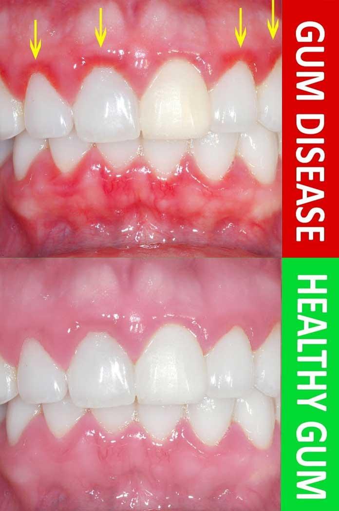 gum-disese